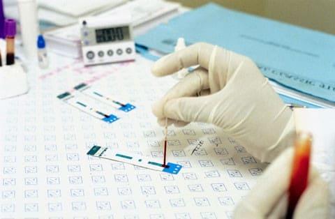 ХГЧ при беременности. Как интерпретировать анализ ХГЧ при беременности?