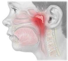 Аденоиды у детей могут вызвать серьезные осложнения