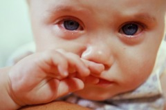 Атопический дерматит и детская психология