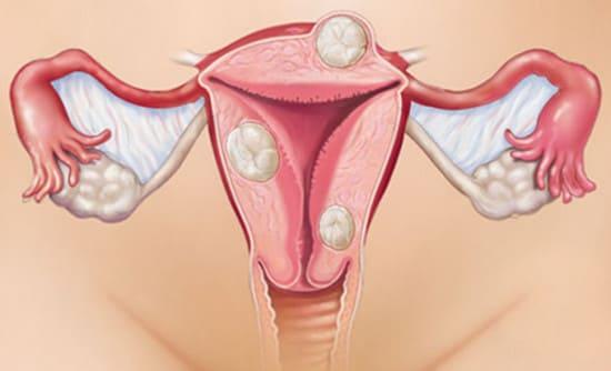 Опасность миомы до, во время и после беременности