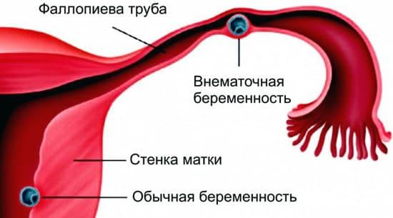 Особенности протекания внематочной беременности