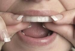Современные методы отбеливания зубов