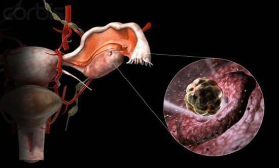 chto-proishodit-s-muzhchinoy-pri-vihode-spermatozoidov