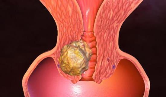 Как защитить себя от рака шейки матки?