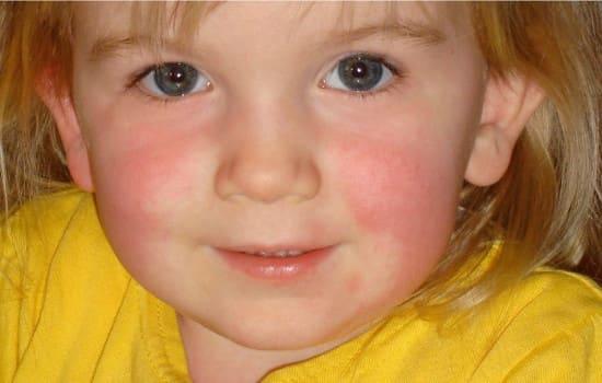 Симптомы скарлатины у детей – памятка для родителей.