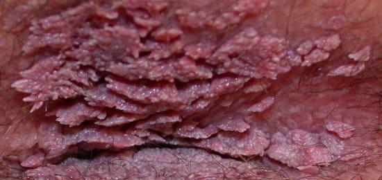 Кондиломы: эрозия шейки матки и другие последствия
